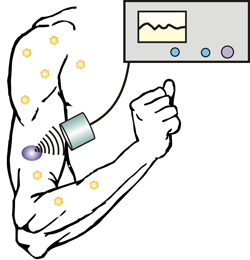 Image: A new technique allows diabetics to control insulin release with an injectable nano-network and portable ultrasound device (Photo courtesy of North Carolina State University).