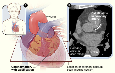 Image: Figure A shows the location and angle of the coronary calcium scan image. Figure B is a coronary calcium scan image showing calcifications in a coronary artery (Photo courtesy of the [US] National Heart, Lung, and Blood Institute).
