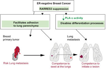 Image: Graphic explaining the consequences of the loss of function of RARRES3 for breast cancer lung metastasis (Photo courtesy of the Institute for Research in Biomedicine).