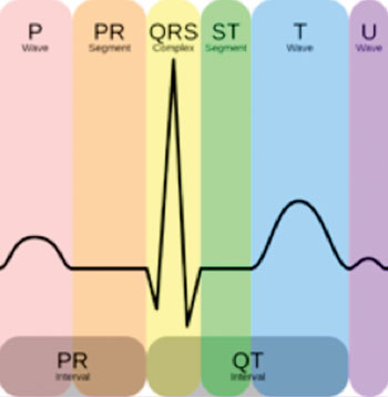 Image: Normal ECG/EKG complex with labels (Photo courtesy of Wikimedia Commons).