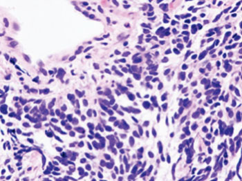 Image: Histopathologic image of small-cell lung cancer (Photo courtesy of Wikimedia Commons).