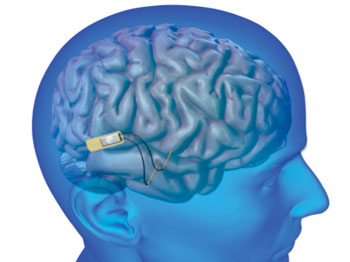 Image: Lawrence Livermore National Laboratory (LLNL) will develop an implantable neural device with the ability to record and stimulate neurons within the brain to help restore memory (Photo courtesy of DOE/Lawrence Livermore National Laboratory).