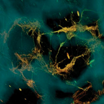 Image: Neurons (greenish yellow) attach to silk-based scaffold (blue) creating functional networks throughout the scaffold pores (dark areas) (Photo courtesy of Tufts University).