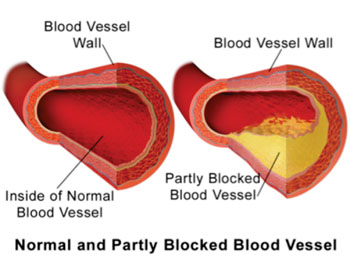 Image: Illustration comparing a normal blood vessel and partially blocked vessel due to atherosclerotic plaque build-up (Photo courtesy of Wikimedia Commons).