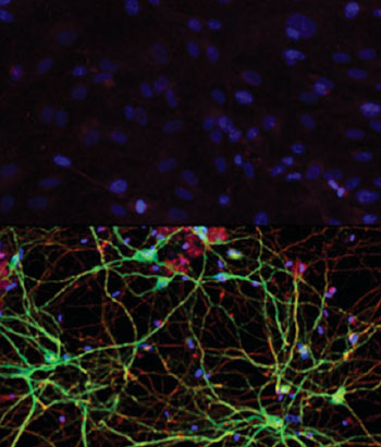 Image: Human skin cells (top) can be converted into medium spiny neurons (bottom) with exposure to the right combination of microRNAs and transcription factors, according to work by Andrew Yoo and his research team (Photo courtesy of Washington University School of Medicine in St. Louis).
