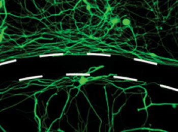 Image: Scientists have created a drug that helps nerve fibers cross scar tissue barriers after spinal cord injury (Photo courtesy of the NIH).