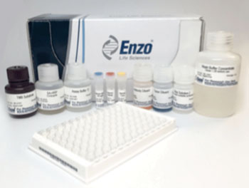 Image: The Histamine ELISA kit (Photo courtesy of Enzo Life Science).
