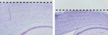 Image: Comparing sections of cortex from a control mouse (left) to a mouse with a presenilin-1 mutation (right). The dashed line indicates the surface of the brain. Presenilin-1 mutations decrease gamma-secretase activity and cause features of neurodegeneration, including shrinkage of the cortex, as shown above (Photo courtesy of Dr. Raymond Kelleher and Dr. Jie Shen, Harvard Medical School).
