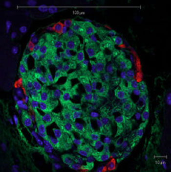 Image: The photo shows a mouse pancreatic islet as seen by light microscopy. Beta cells can be recognized by the green insulin staining. Glucagon is labeled in red and the nuclei in blue (Photo courtesy of Wikimedia Commons).