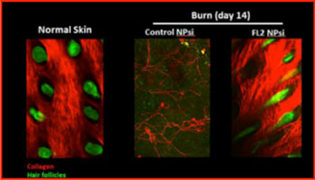 Image: Imaging of burn wounds in mice by confocal microscopy indicates that those treated with FL2 siRNA nanoparticles (far right) experienced collagen deposition and hair follicle formation (Photo courtesy of the Albert Einstein College of Medicine).