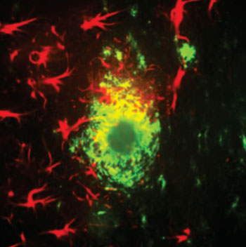Image: Star-like glial cells in red surround alpha-beta plaques in the cortex of a mouse with a model of Alzheimer\'s disease (Photo courtesy of Strittmatter laboratory/Yale University).