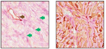 Image: Two adjacent sections of a mouse breast tumor. The tissue at left was stained so that normal blood vessels can be seen (black arrow); extending from these vessels are blood filled channels (green arrows). On the right, the tissue was stained for a fluorescent protein expressed by the tumor cells. Here it is seen that blood-filled channels were actually formed by tumor cells in a process known as vascular mimicry (Photo courtesy of Cold Spring Harbor Laboratory).