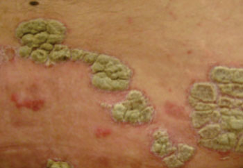 Image: Psoriasis plaques in the skin (Photo courtesy of Wikimedia Commons).