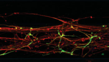 Image: Neurons cultivated with the help of ordinary skin cells create a three-dimensional network on a chip (Photo courtesy of Dr. Edinson Lucumi Moreno, University of Luxembourg).