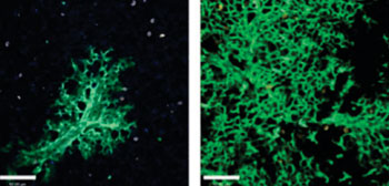 Image: New lung cells are continuously created to replace the damaged ones: Lung tissue six weeks after stem cell transplantation (left) and 16 weeks after transplantation (right). Cells that originated in the transplanted stem cells are green, as opposed to the uncolored host lung cells (Photo courtesy of the Weizmann Institute of Science).