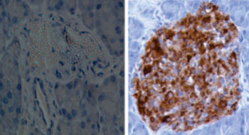 Image: A representative image of islets from diabetic mice, which did not receive IL-35 (left) and received IL-35 (right). The brown color represents insulin producing beta cells. New research showed progress in the use of the anti-inflammatory cytokine for treatment of Type I diabetes (Photo courtesy of Dr. Kailash Singh, Uppsala University).