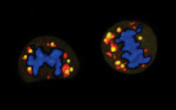 Image: During the process of cell division, the mitochondria are damaged (yellow indicator) making the cells particularly dependent on glucose as a source of energy. Genetic material is shown in blue and mitochondria in red (Photo courtesy of the Spanish National Cancer Research Center).