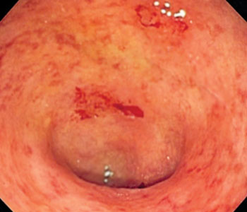 Image: Endoscopic image of a bowel section known as the sigmoid colon afflicted with ulcerative colitis. The internal surface of the colon is blotchy and broken in places (Photo courtesy of Wikimedia Commons).