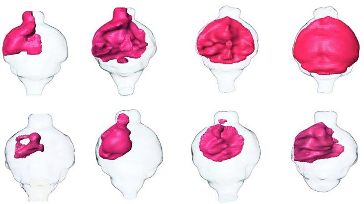 Image: MRI renderings of mouse brain tumors. Tumors treated with SKOG102 (lower panels) shrank by about half compared to tumors treated with a control (upper panels) (Photo courtesy of the University of California, San Diego).