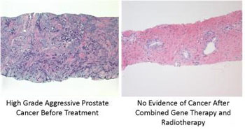 Image: The image on the left shows high-grade aggressive prostate cancer before treatment. The image on the right shows no evidence of cancer after combined gene therapy and radiotherapy (Photo courtesy of the Houston Methodist Hospital).