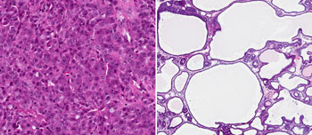 Image: Left panel: Micrograph of an undifferentiated breast tumor - densely packed with cancerous cells and with a high potential to spread. Right panel: Differentiated tumor following anti-Malat1 ASO treatment with cyst-like cells filled with fluid containing, among other things, milk proteins. Treated tumors were comparatively static with reduced metastatic activity (Photo courtesy of Spector Laboratory, Cold Spring Harbor Laboratory).
