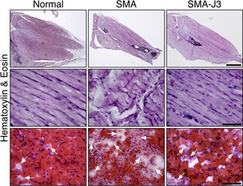 Image: From left to right: Microscopic images comparing the hind leg muscles of normal mice, mice with spinal muscular atrophy, and mice with spinal muscular atrophy that have had the enzyme Jnk3 inhibited. Jnk3 deficiency appears to reduce muscle degeneration (muscle-wasting) and increase muscle growth in mice with the disease (Photo courtesy of the journal Human Molecular Genetics).