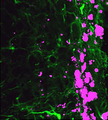 Image: Reprogrammed stem cells (green) chase down and kill glioblastoma cells (pink), potentially offering a new and more effective treatment option for a disease that has not had any in more than 30 years (Photo courtesy of the University of North Carolina).