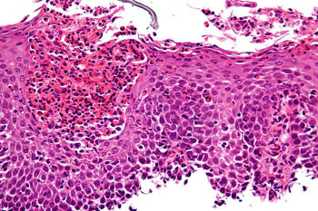 Image: A micrograph of eosinophilic esophagitis (EoE), H&E stain. Characteristic features are present: Abundant eosinophils—criteria vary; one common definition is: > 20 eosinophils/0.24 mm2; Papillae are elongated; papillae reach into the top 1/3 of the epithelial layer; Basal cell hyperplasia; > 3 cells thick or >15% of epithelial thickness; Spongiosis (Photo courtesy of Wikimedia).