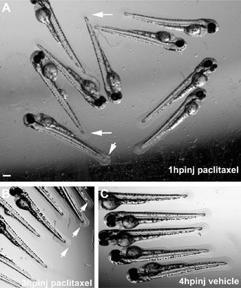 Image: Altered caudal fin morphology following paclitaxel injection into larval zebrafish at 2 dpf. (A) Morphological changes (arrows) in the fin fold 1 hour after injection with 10 µM paclitaxel (insets show higher magnification). (B) Fin damage (arrows) 3 hour after paclitaxel injection. (C) Vehicle controls with undamaged fins 4 hour postinjection. (Scale bar, 200 µm.) hpinj = hours postinjection. (Image courtesy of Lisse TS et al, 2016, PNAS.)