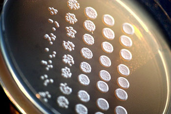 Image: Drop-inoculation of Saccharomyces cerevisiae mutants on an agar plate. The assay compares the viability of different yeast mutants (Photo courtesy of Wikimedia Commons).